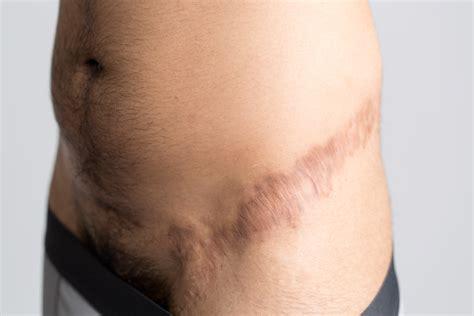 Ftm penis surgery stage 1 of 3 sava perovic jpg 5760x3840